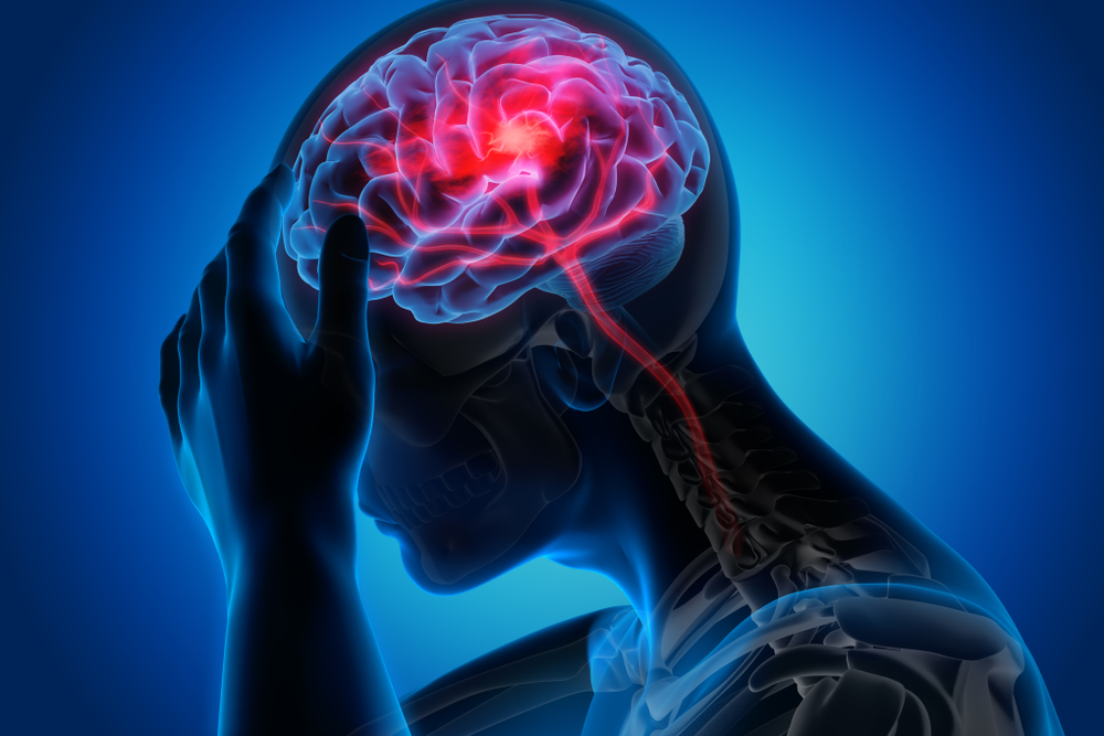 Look For Alternatives - Try Naturopathic Brain Injury Treatment In San Diego